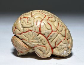 Early 20th C. European 6-part Anatomical Brain Model