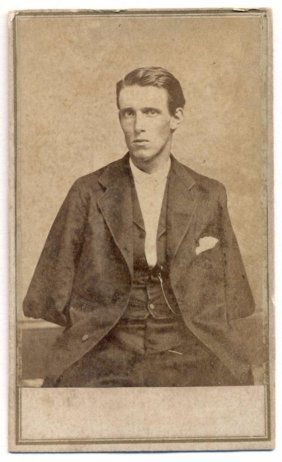C 1865 Civil War Soldier Double Amputee Alfred Stratton