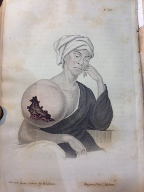 (1838)the Institutes And Practice Of Surgery: Being The